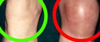 Внешний вид больного колена