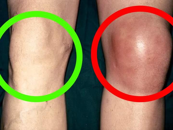 Опухло колено без ушиба и больно ходить: причины, диагностика