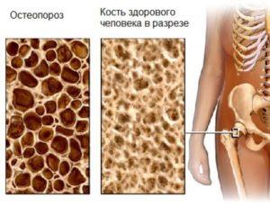 Строение кости при остеопорозе