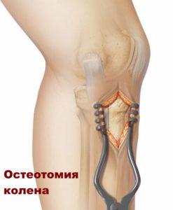 Операция колена