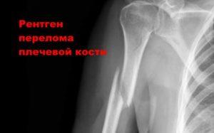Снимок перелома кости плечевого комплекса