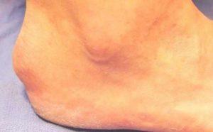 Возможные следствия борьбы с экзостозом