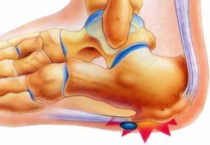 Строение костного нароста