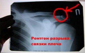 Снимок разрыва связок плечевого комплекса