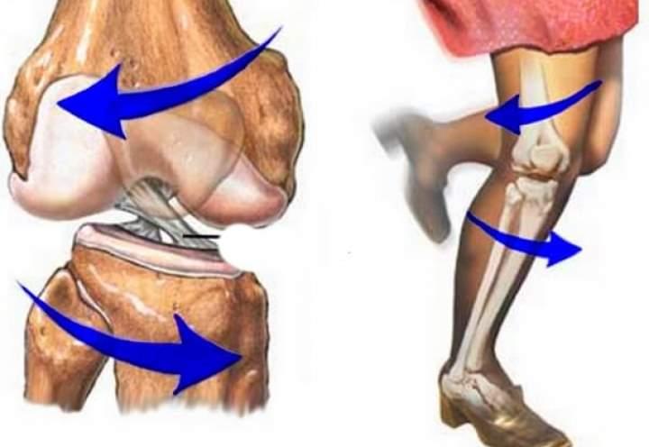 Разрыв передней крестообразной связки коленного сустава: причины, симптомы и лечение.