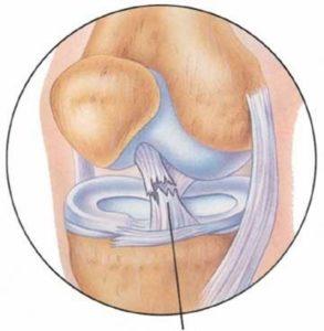 Схема разрыва связки колена