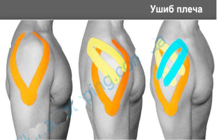 Как сделать тейпинг плеча