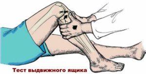 Рисунок теста на колене