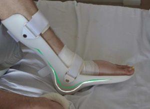 Вид лангетки на ноге - задняя