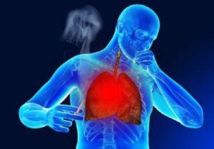 Причины боли в грудине от курения