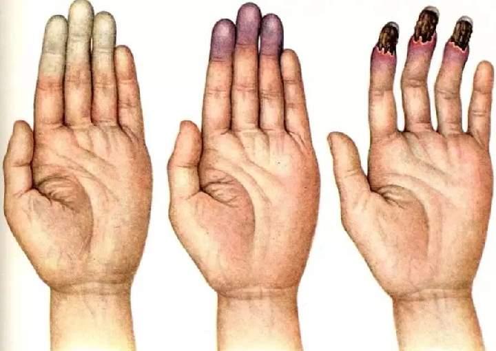 Немеет левая рука (парестезия) - причины онемения, лечение
