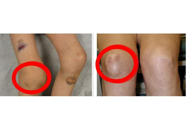 Гемартроз коленного сустава фото