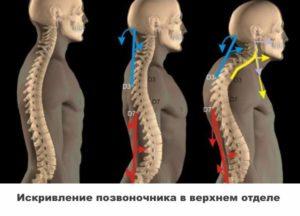 Проблемы с шеей - Искривление позвоночника в верхнем отделе