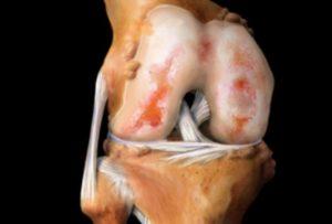 Фото кости с артрозом