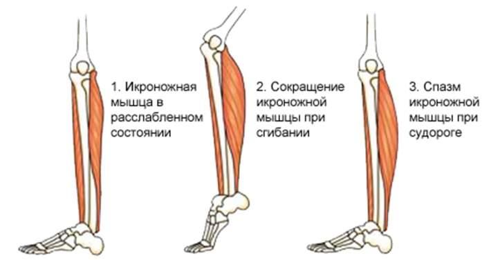 Норма и спазм в мышце