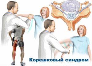 Проблемы с шеей - Корешковый синдром