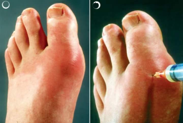 Нестероидные противовоспалительные препараты при подагре Суставы
