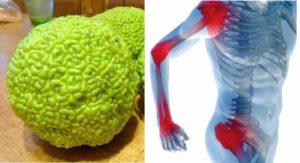 Больные суставы и маклюры плод