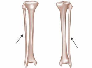 Виды на малую берцовую кость