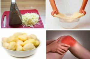 Лечение колена картофелем