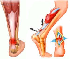 Изображение - Лечение растяжения мышц суставов Rastyazhenie-myshts-300x253