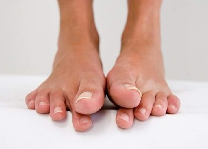 Спазм в мышце пальцев стоп