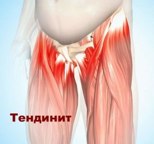 Изображение - Как выглядит коксартроз тазобедренного сустава Tendinit-TBS-300x281