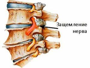 Схема позвонков и нерва