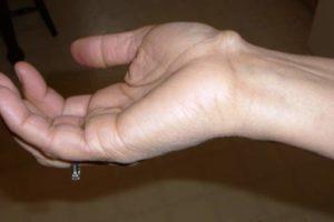 Шишка на запястье руки