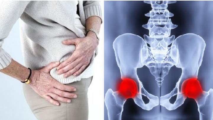 Строение тазобедренного сустава у женщин