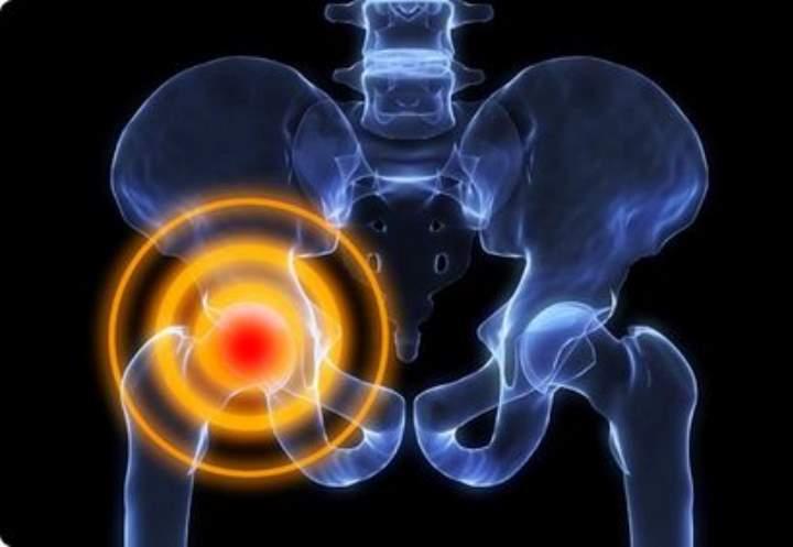Боли в тазобедренном суставе почему появляются неприятные ощущения