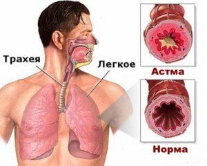Боль в груди от астмы
