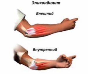 Изображение - Лечение растяжения мышц суставов epikondilit-300x253