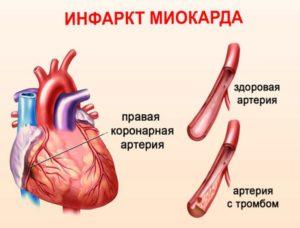 Строение сосудов при инфаркте