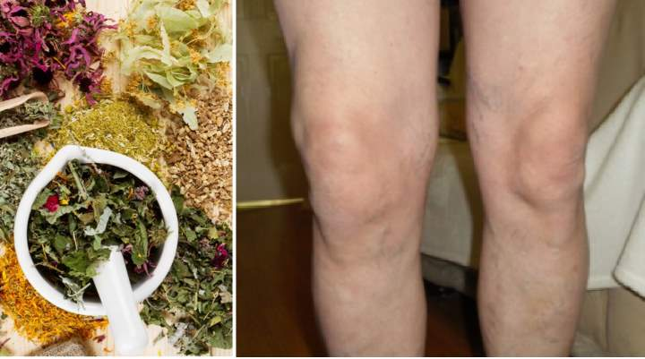 Артроз коленного сустава 2 степени как лечить народными средствами