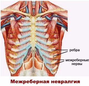 Нервы между ребрами