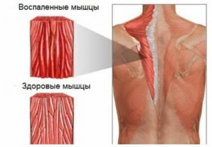 Воспаленные мышцы