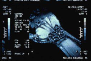 МРТ-графия запястье руки