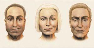 Неврит лица