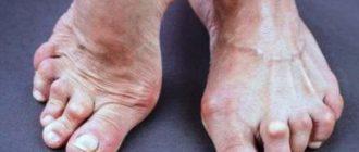 Ревматический артрит на ногах