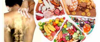 Остеохондроз и витамины