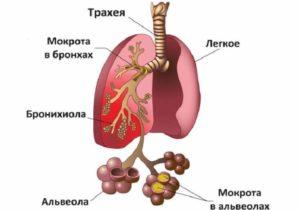 Причины боли в грудине - пневмония