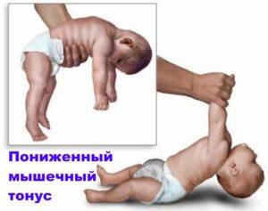 У ребенка нет тонуса мышц