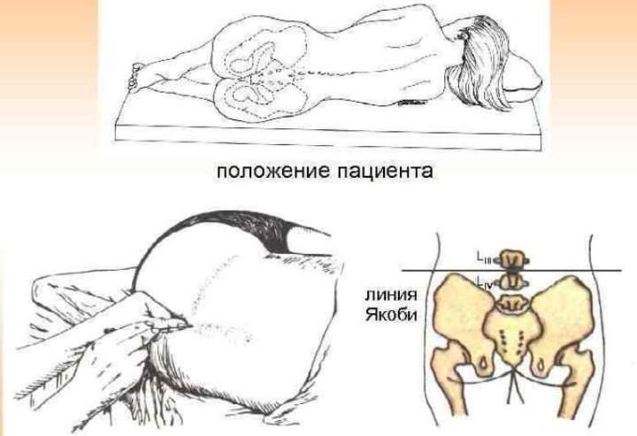 Рисунок пункции с положения лежа