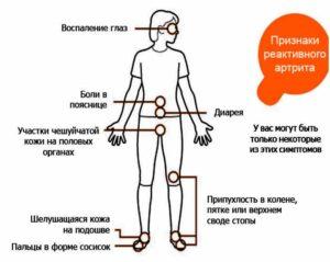 Признаки реактивного артрита