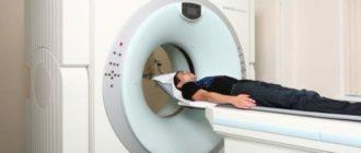 Аппарат спиральной томографии