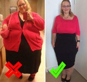 Избыточный вес до и после похудения