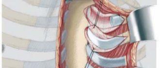Рассечение грудины по равичу