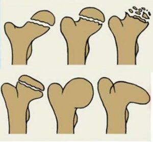 6 картинок сустава