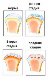 Проблема тазобедренного сустава в развитии